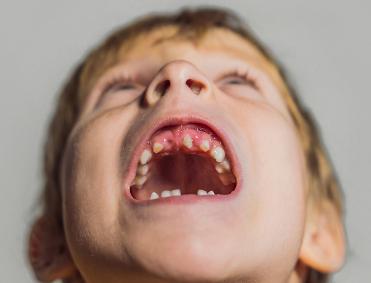 Kids narrow arch dental problem